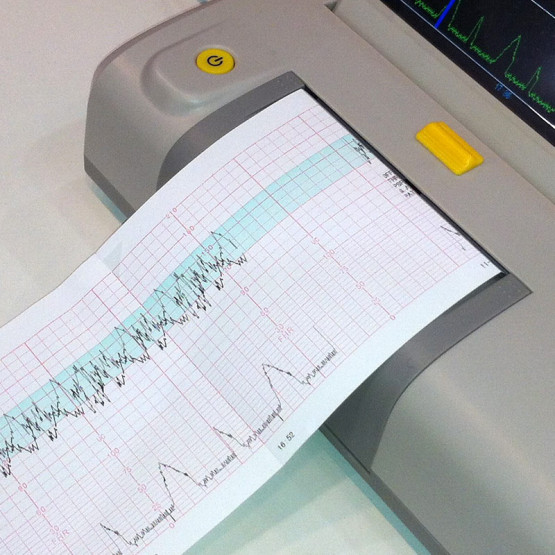 fetal monitoring papers