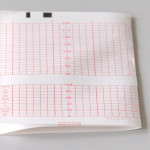 fetal monitor printing paper